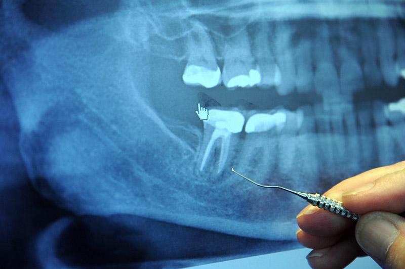 Hình ảnh mô xương răng thu được qua phim chụp X-Quang
