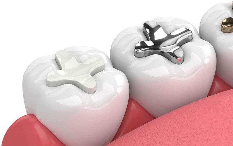 Hàn trám răng để điều trị sâu răng ngà nông