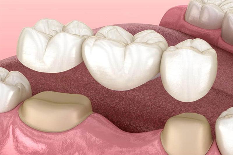 Cầu răng là giải pháp khắc phục sau khi nhổ răng số 5