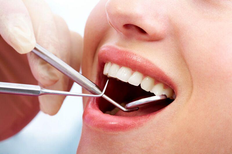 Nhổ răng là biện pháp cuối cùng nếu răng bị bệnh không thể bảo tồn