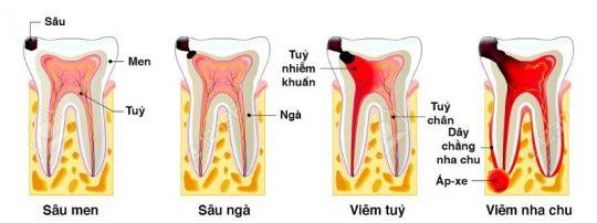 Quá trình sâu răng trải qua 4 giai đoạn