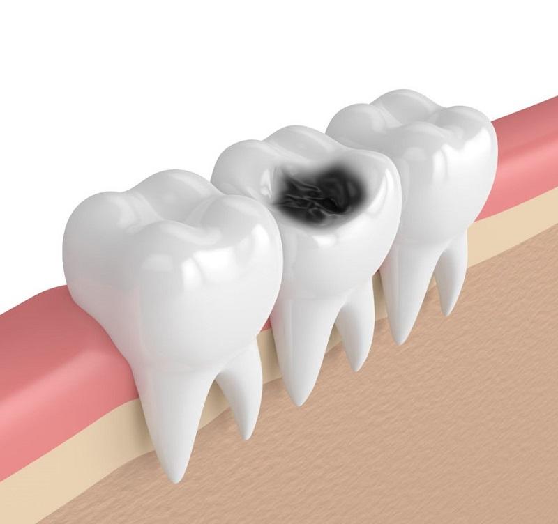 Bệnh sâu răng hình thành do nhiều nguyên nhân