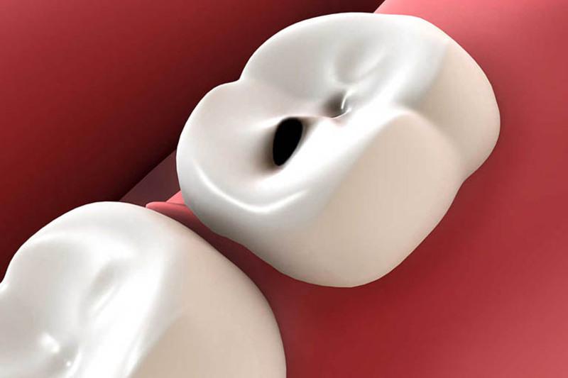 Sâu răng nhẹ cần được điều trị kịp thời để tránh lan rộng
