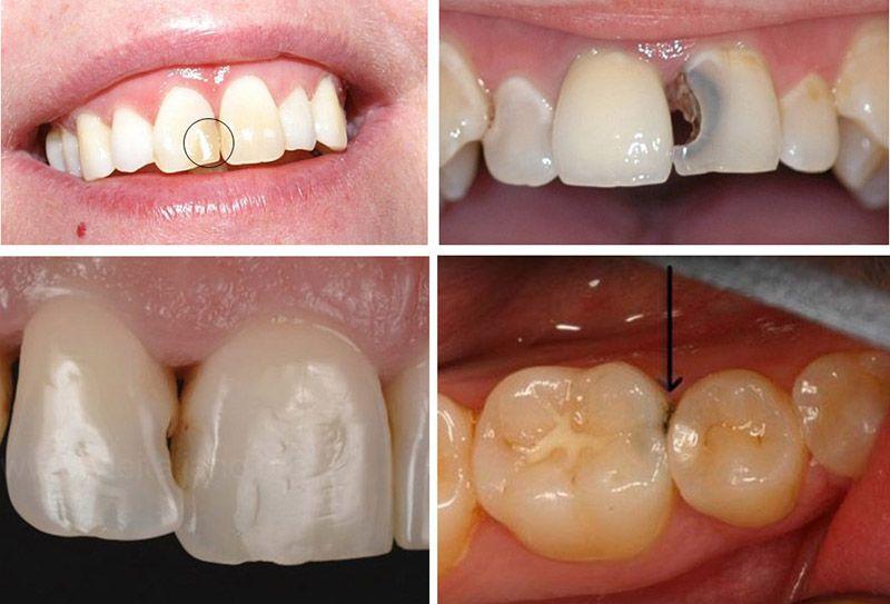 Vi khuẩn tích tụ ở kẽ răng và gây hỏng lớp men, sau đó tấn công ngà