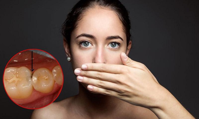 Sâu kẽ răng gây đau đớn cho bệnh nhân, khiến hơi thở có mùi hôi khó chịu