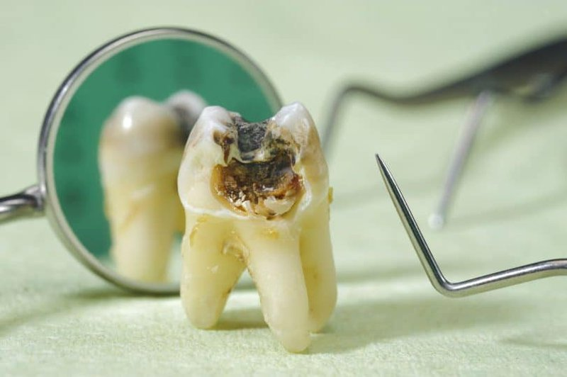 Nếu bạn bị sâu răng quá nặng thì các nha sĩ có thể phải nhổ chiếc răng sâu ý đi
