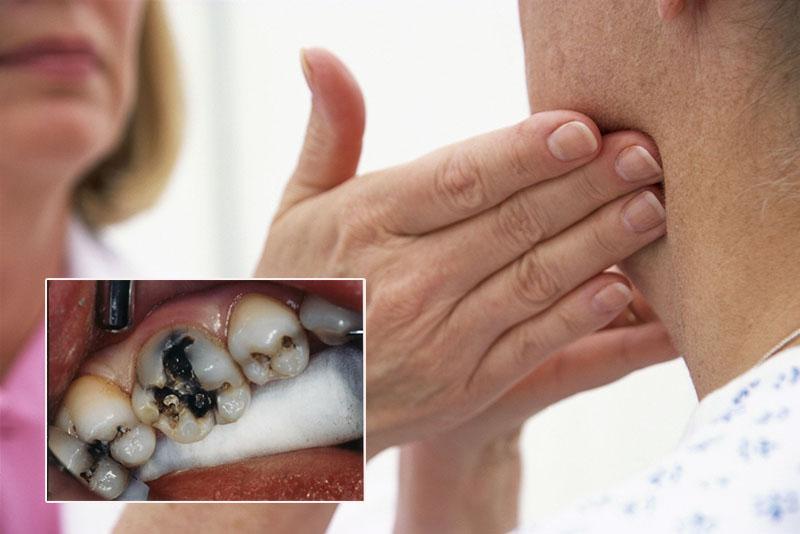 Bệnh nhân sâu răng bị nổi hạch ở cổ gây đau nhức