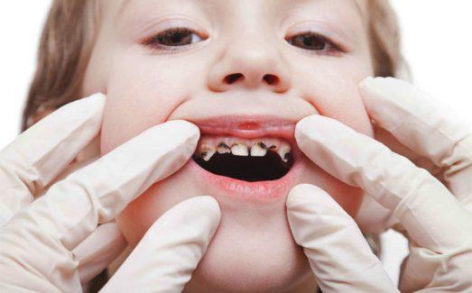 Sâu răng trẻ em