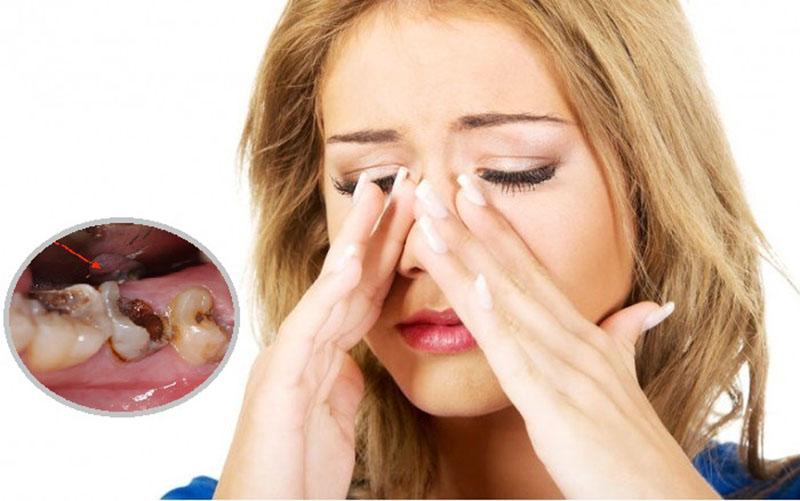 Sâu răng viêm xoang là tình trạng không thể xem thường