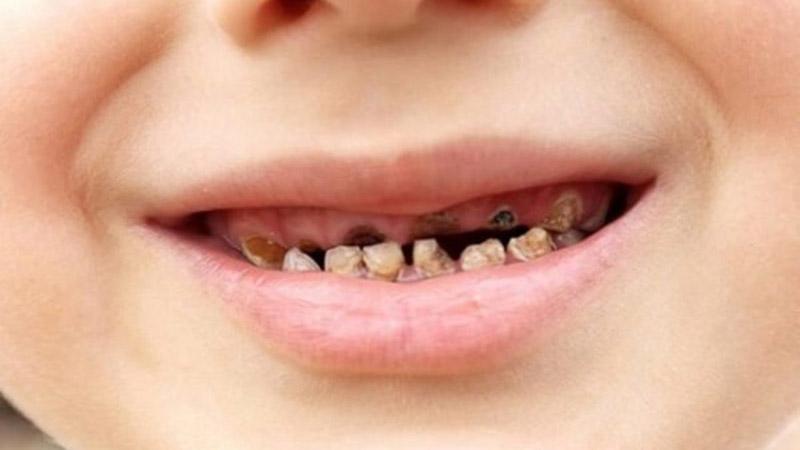 Tình trạng răng sún đen mất thẩm mỹ