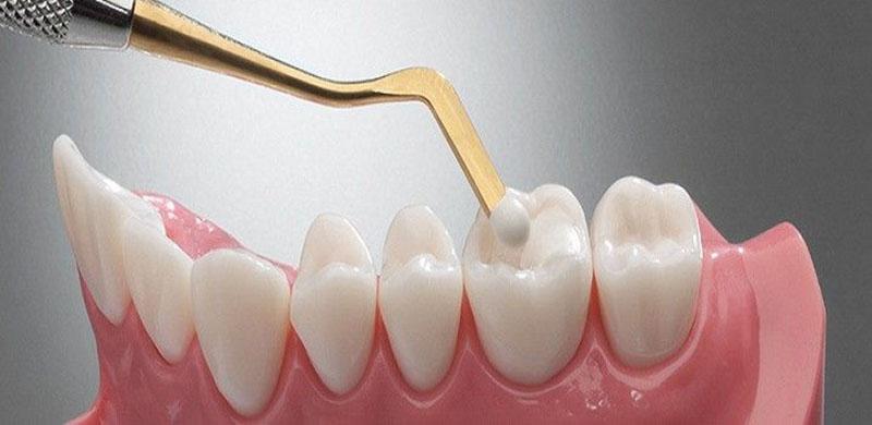 Composite giúp răng được trám có màu sắc tự nhiên