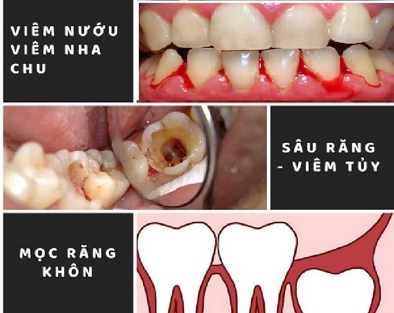 Các bệnh lý về răng có thể tạo điều kiện cho áp xe nướu phát triển