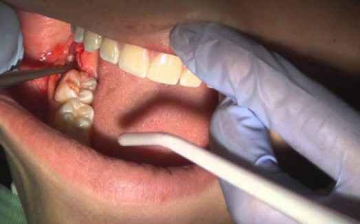 áp xe răng khôn