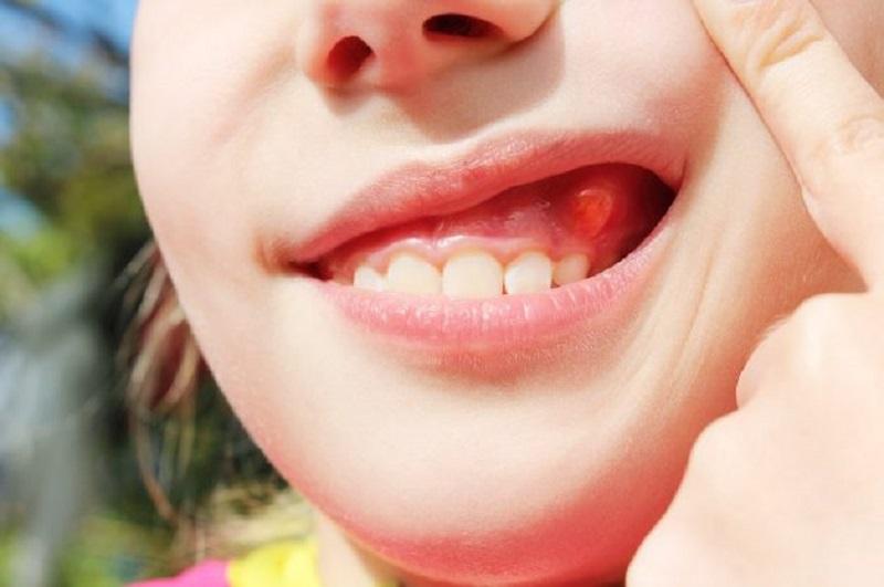 Trẻ bị áp xe răng thường do nhiễm khuẩn