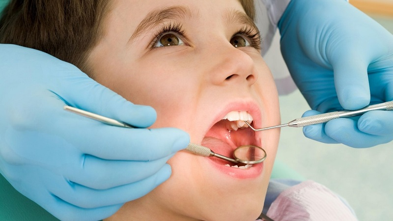 Áp xe răng ở trẻ em có thể được bác sĩ chẩn đoán bằng cách quan sát bằng mắt thường