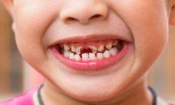 Sún răng là bệnh lý về răng miệng phổ biến ở trẻ nhỏ