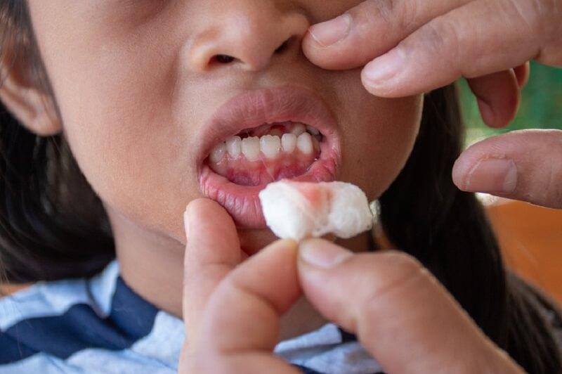 Nguy cơ mất răng do viêm nha chu ở trẻ nhỏ
