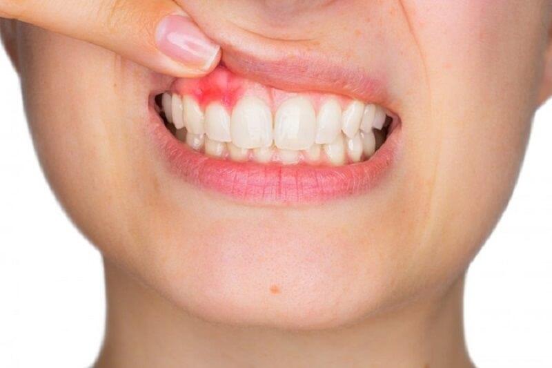 Viêm lợi là bệnh do vi khuẩn, mảng bám lâu ngày tích tụ trên răng