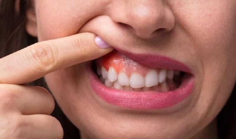 Súc miệng bằng nước chứa tinh dầu sả mỗi ngày giúp cải thiện triệu chứng viêm lợi hiệu quả
