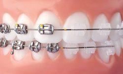 dây cung niềng răng