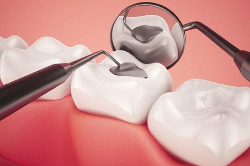 Trám răng là phương pháp sử dụng vật liệu lấp đầy những khoảng trống ở trên bề mặt răng