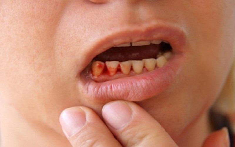 Hôi miệng chảy máu chân răng là bệnh lý thường gặp hiện nay