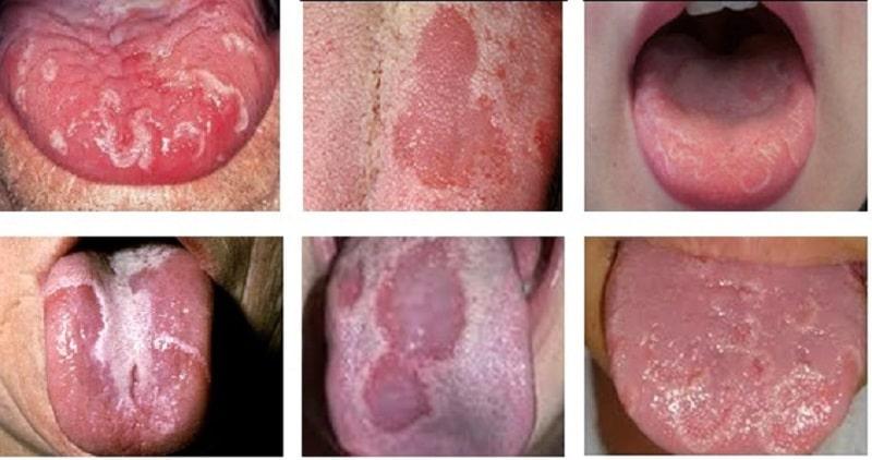 Bệnh nấm miệng được đặc trưng bởi các mảng bám màu trắng dính chặt trên lưỡi