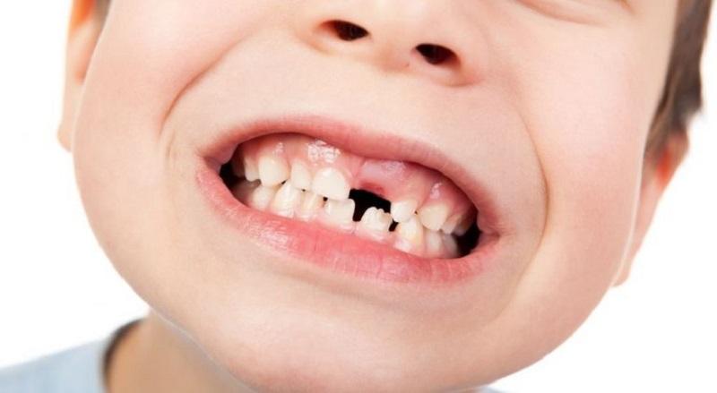 Trẻ bị xơ hóa nướu làm dày lên khiến răng vĩnh viễn mọc chậm