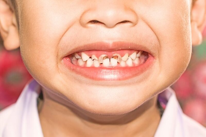 trẻ thay răng sữa