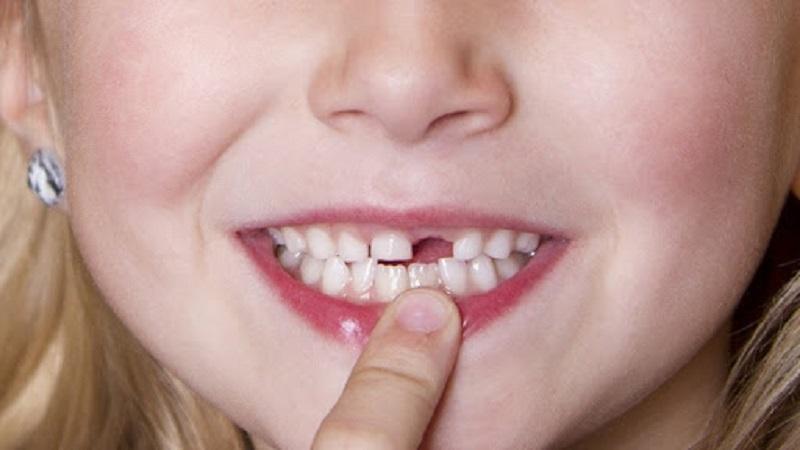 Giải đáp chi tiết nhổ răng sữa cho trẻ bao nhiêu tiền