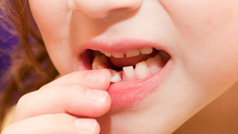 Khi trẻ thay răng sữa, phụ huynh cần chú ý vệ sinh răng miệng sạch sẽ cho bé