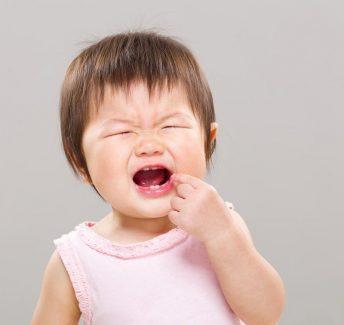 răng sữa nhổ còn sót chân
