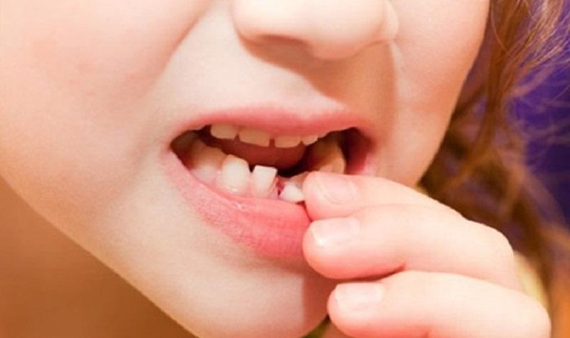 Nhổ răng sữa lung lay khi nào tùy thuộc vào cơ địa và mức độ lung lay của răng