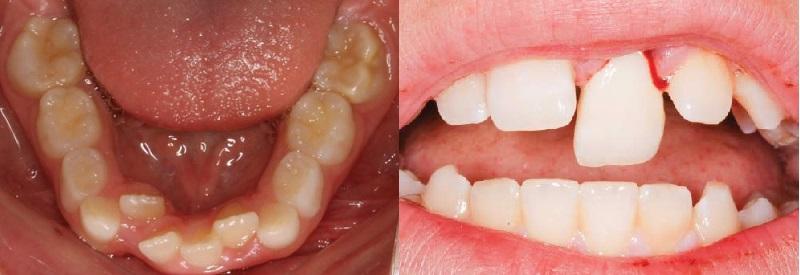 Nhổ răng sữa không đúng cách có thể làm răng mọc lẫy, khấp khểnh
