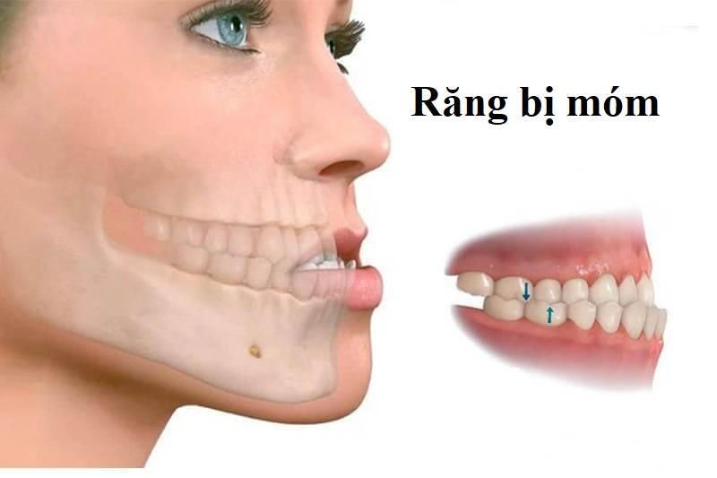 Hình ảnh một người bị móm răng