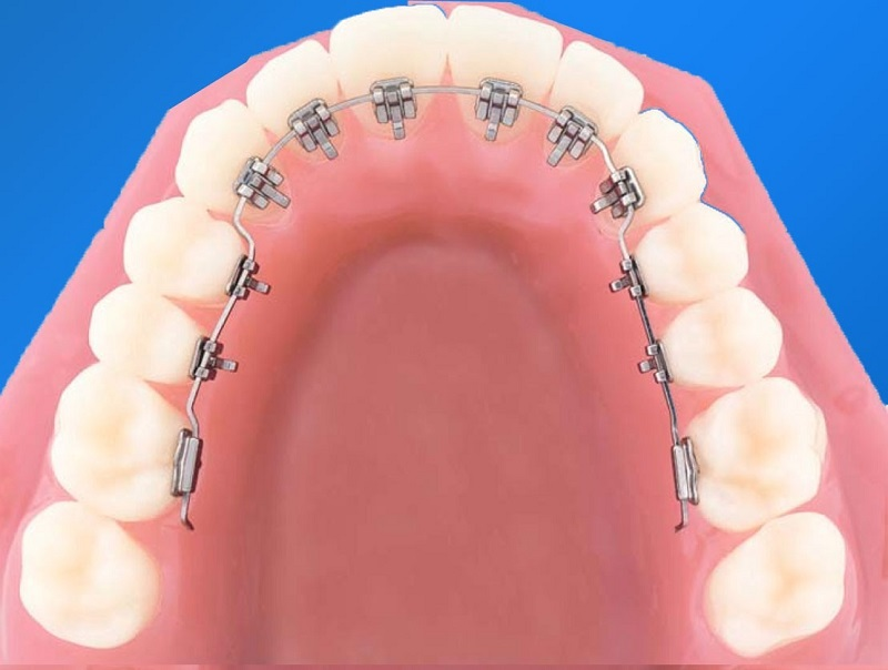 Niềng răng mặt lưỡi có tính thẩm mỹ cao