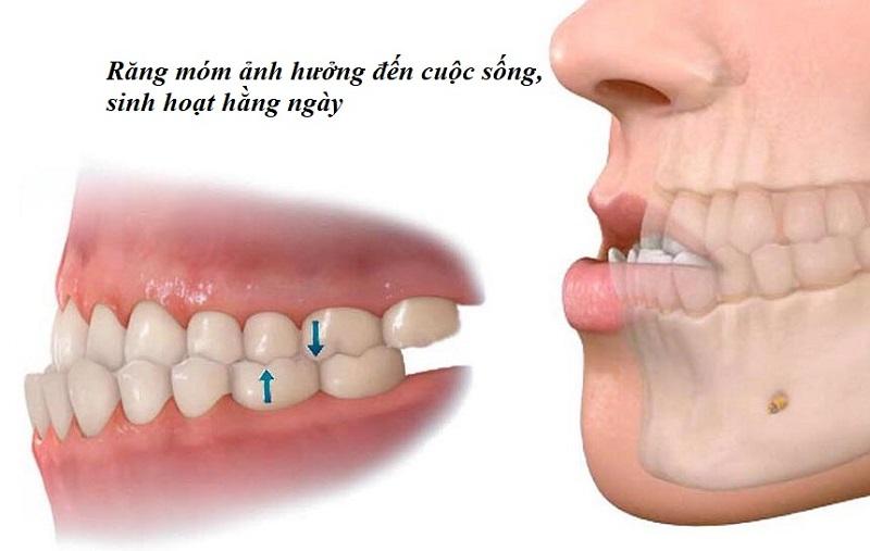 Răng móm ảnh hưởng nhiều đến hoạt động sinh hoạt hằng ngày