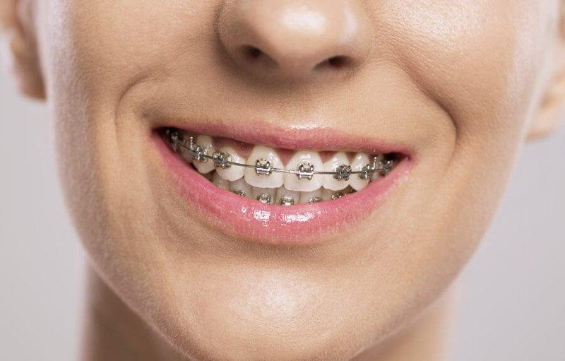 Hình thức niềng răng sử dụng mắc cài kim loại