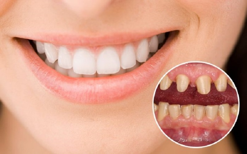 Răng ê buốt sau khi bọc sứ sẽ xảy ra trong thời gian 1 cho đến 2 tuần đầu tiên