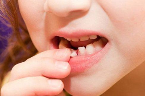 Răng trẻ mọc lẫy sẽ xuất hiện phổ biến ở trẻ từ 5 đến 7 tuổi