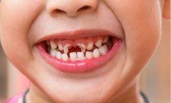 sún răng cửa