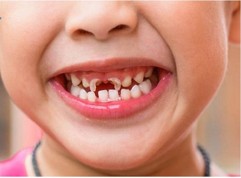 Tình trạng sún răng cửa xảy ra rất phổ biến ở trẻ em