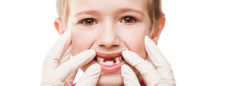 Sún răng làm giảm thẩm mĩ khiến nhiều bé tự ti