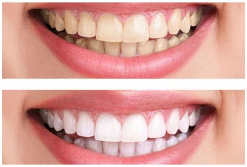 Hiện nay có khá nhiều phương pháp tẩy trắng răng để lấy lại màu sắc tươi sáng hơn cho răng