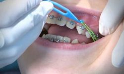 thun niềng răng