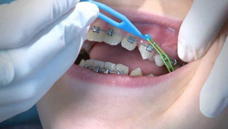 Dây thun niềng răng là dụng cụ không thể thiếu trong phương pháp niềng răng bằng mắc cài