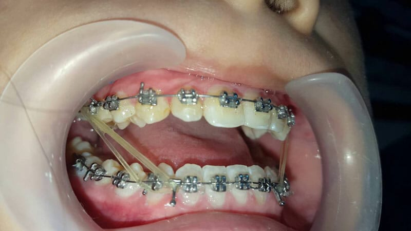Thun niềng răng được sử dụng trong cả trường hợp khớp cắn hở và khớp cắn đối