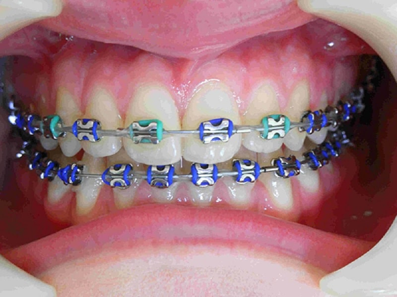 Dây thun trong niềng răng có rất nhiều màu sắc cho bạ lựa chọn