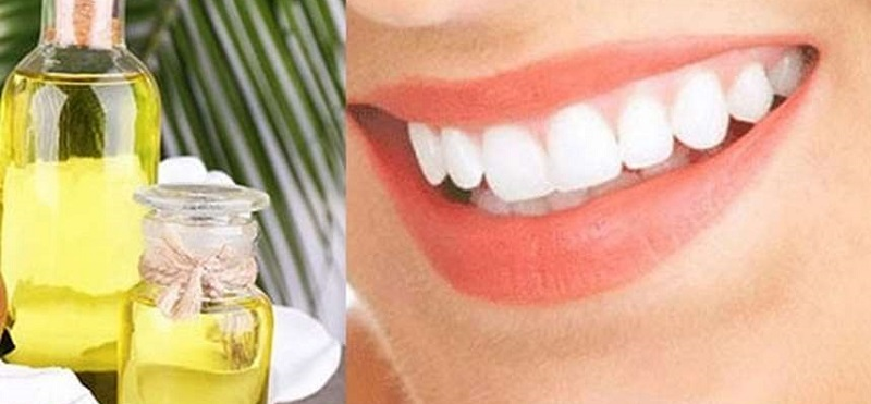 Cách trị sâu răng với dầu dừa chỉ có hiệu quả trong những trường hợp mới mắc bệnh