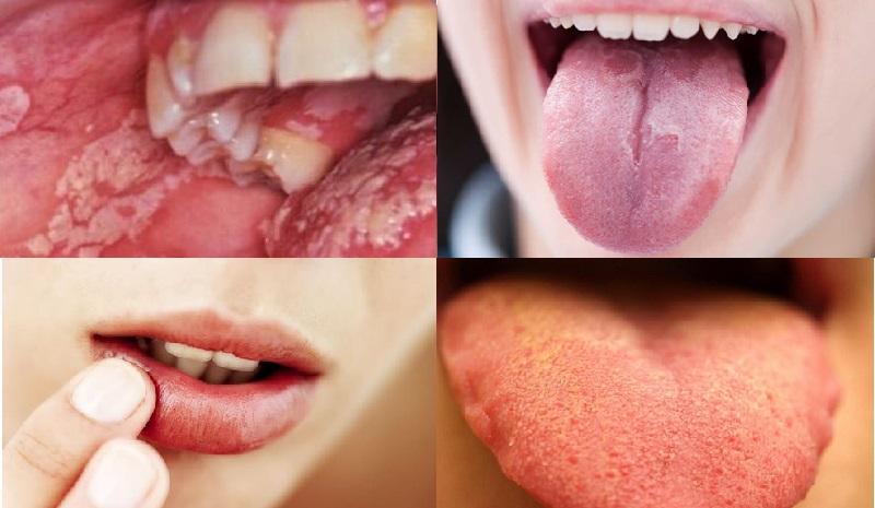 Một số biểu hiện của bà bầu bị tưa lưỡi, tưa miệng